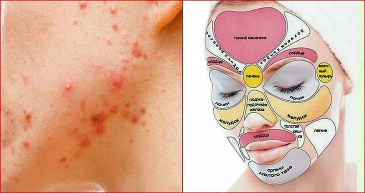 Сыпь на лице у взрослых, причины и методы лечения высыпаний