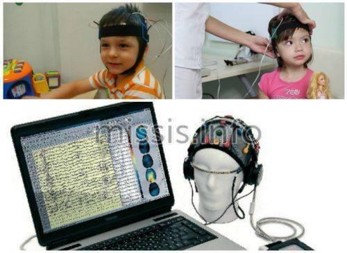 Микрополяризация головного мозга в москве