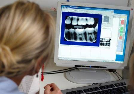 Через сколько после рентгена зуба можно беременеть - мама