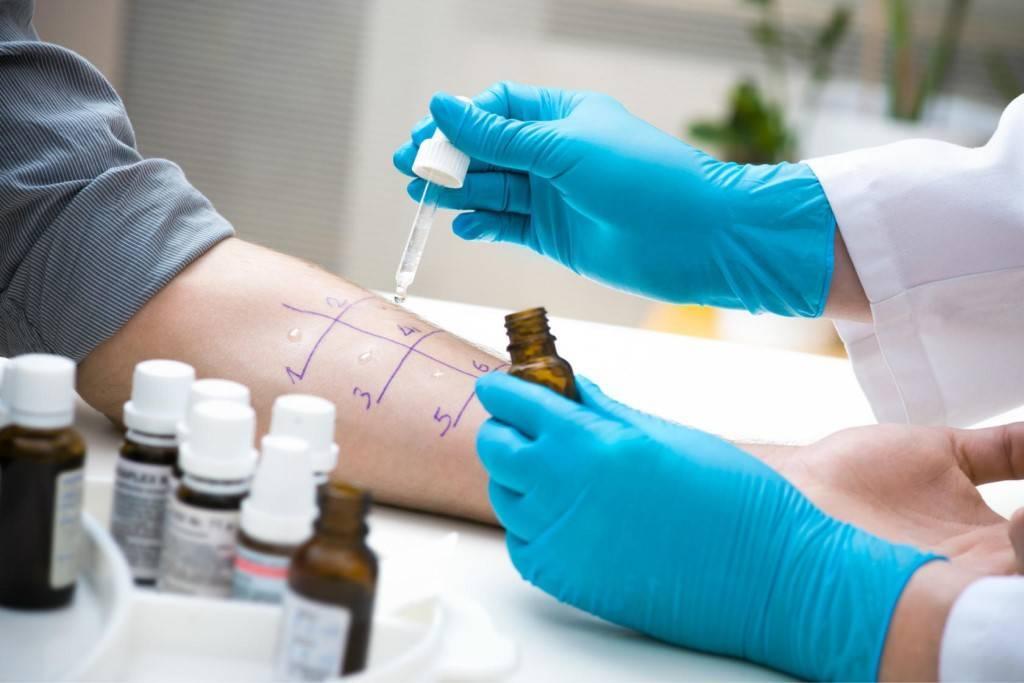 Анализ на аллергены у ребенка: сдача крови, кожные пробы, провокационный тест при аллергии