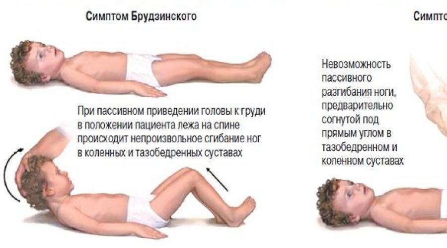 Серозный менингит у детей: симптомы и последствия, инкубационный период, признаки