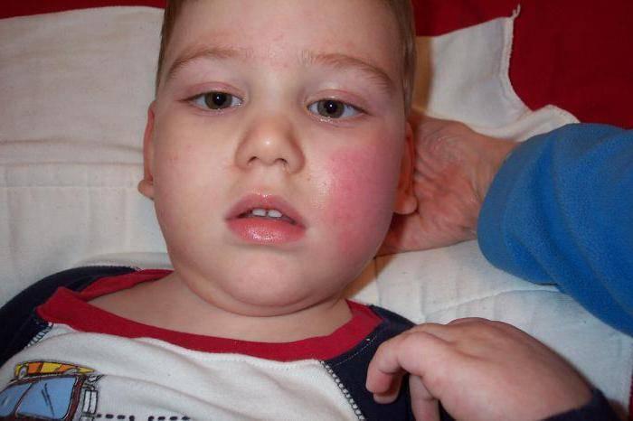 Инфекционная эритема у детей: фото, симптомы и лечение. инфекционная эритема у детей и взрослых – симптомы и лечение
