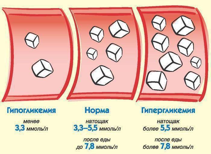 Норма глюкозы в крови у беременных женщин