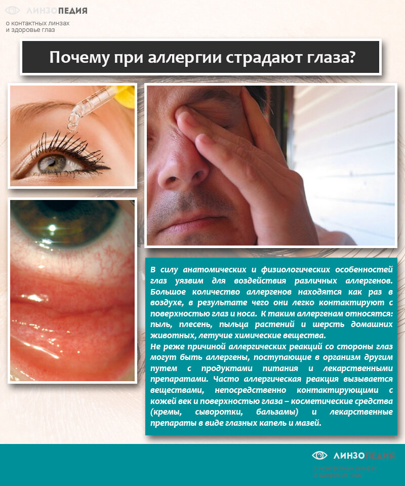 Лечение аллергии на глазах - глаза чешутся, краснеют и отекают