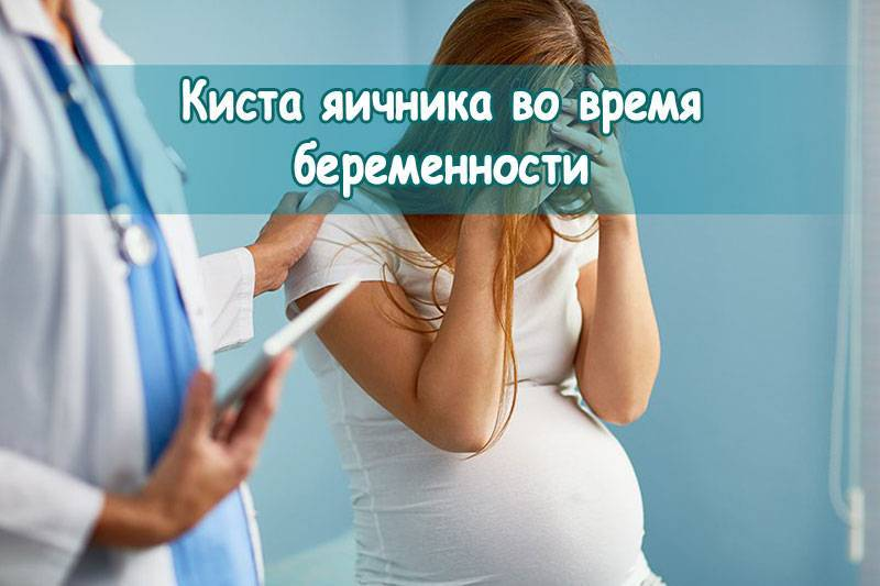 Беременность при наличии эндометриоидной кисты яичника