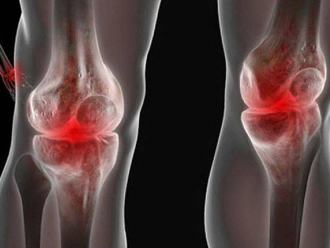 Причины, симптомы и лечение детского артрита