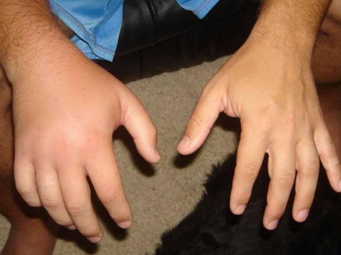 Перелом руки со смещением лечение срок срастания у ребенка