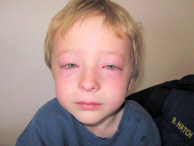 Симптомы и первая неотложная помощь при отеке квинке у детей