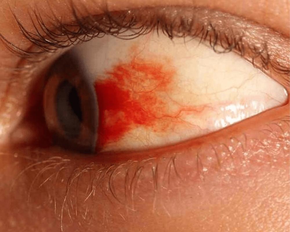 Капилляр в глазу. причины и возможные последствия. как лечить?
