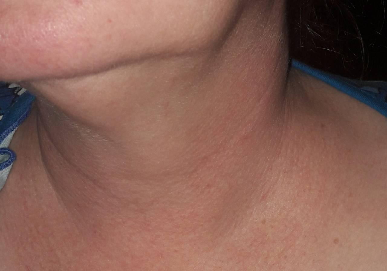 Опухоль на шее справа, слева или сзади: симптомы и лечение
