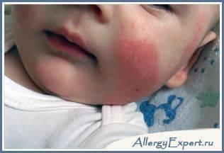 Аллергия на витамин д • аллергия и аллергические реакции