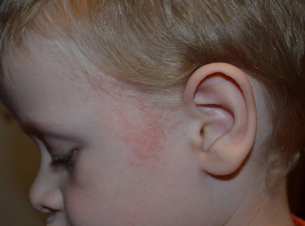 Золотуха у детей: что это за болезнь, симптомы у грудничка, экссудативный диатез