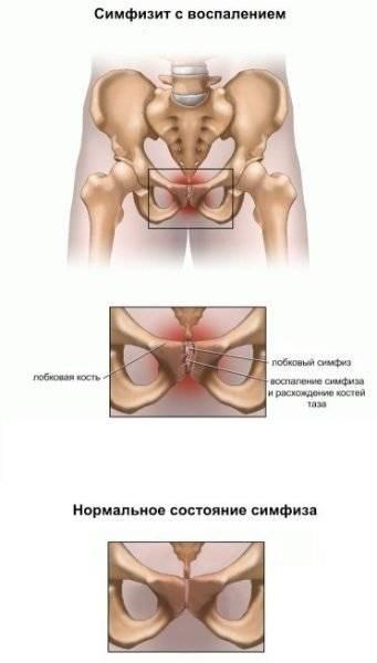 Расхождение тазобедренных костей при родах