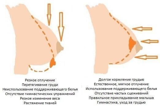 Когда после зачатия начинает болеть грудь: на какой день набухают молочные железы – через сколько времени