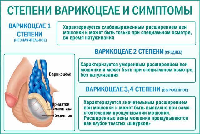 Варикоцеле в 14 лет у подростков: причины и симптомы, классификация, лечение и профилактика