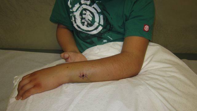 У ребенка перелом руки без смещения лечение