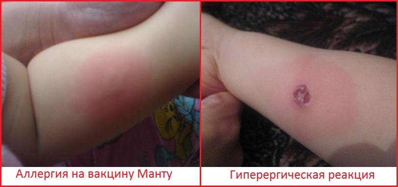 Аллергическая реакция на пробу манту. аллергическая реакция у ребенка на манту: симптомы и антигистаминные препараты