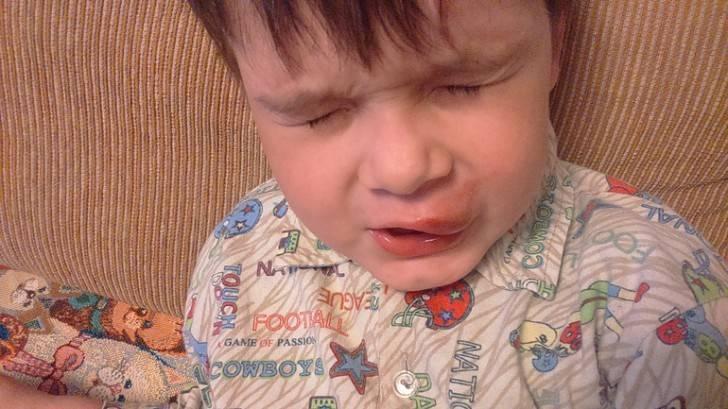 Ушиб губы с отеком лечение у ребенка | стоматологический портал