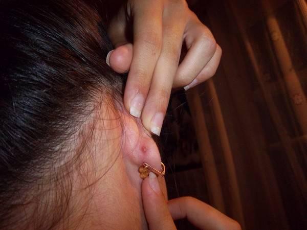 Решили проколоть уши? как обеспечить правильный уход за ушами после прокола