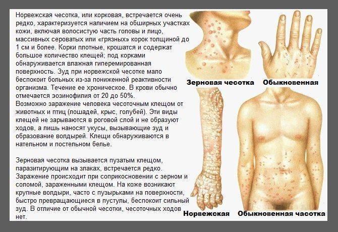 Чесотка у детей - фото симптомов и лечение заболевания