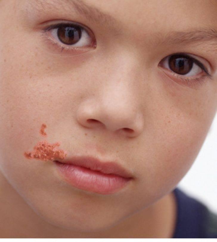 Импетиго. причины, симптомы, признаки, диагностика и лечение патологии :: polismed.com