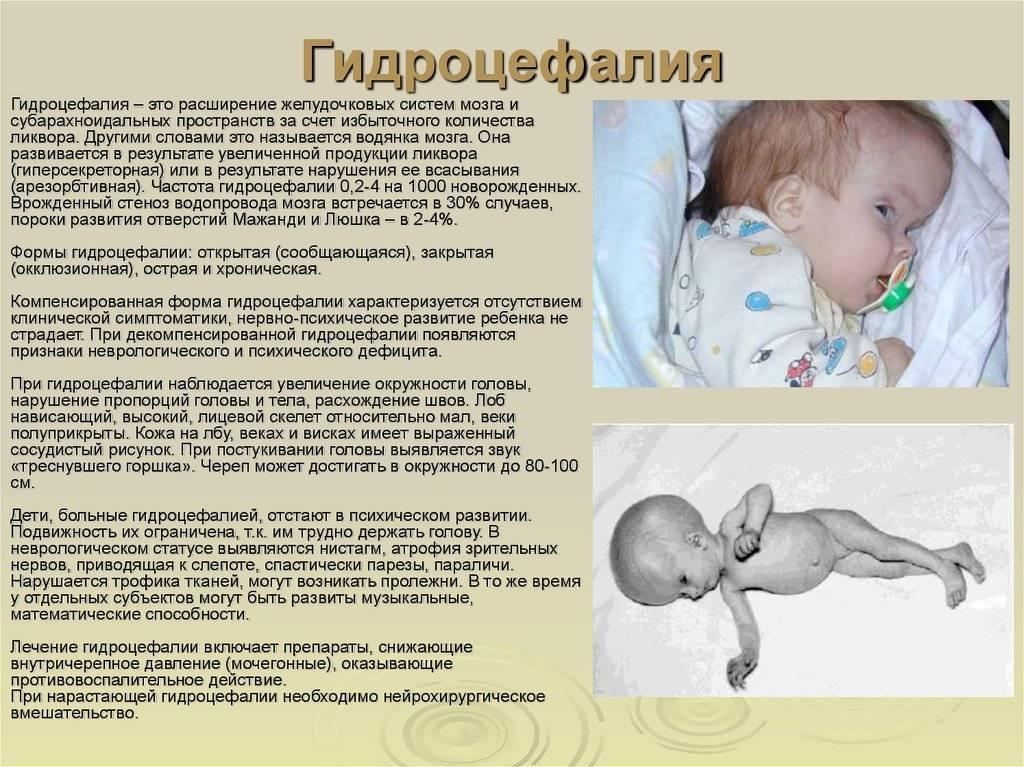 Особенности водянки головного мозга (гидроцефалии) у новорожденных и детей постарше