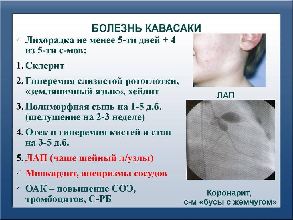 Болезнь (синдром) кавасаки у детей: насколько опасен этот системный васкулит?