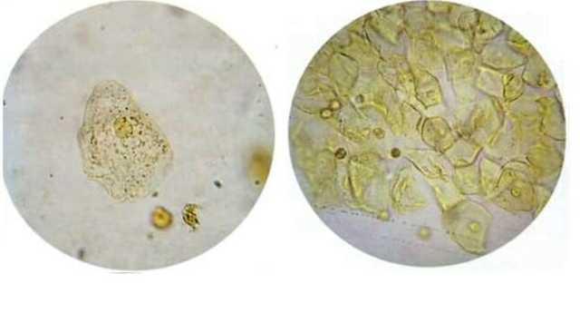Эпителий в моче при беременности: плоский, почечный, переходный - наше здоровья