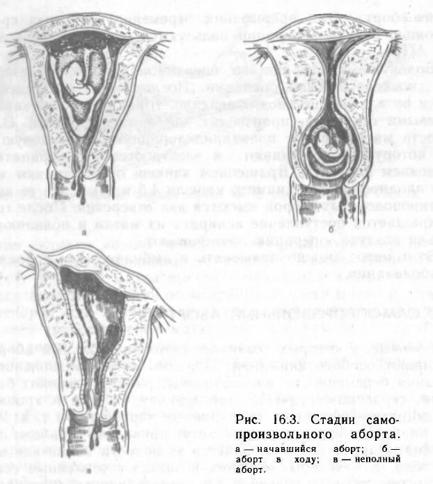 Угроза выкидыша (прерывания беременности) – симптомы. дюфастон при угрозе выкидыша на ранних сроках