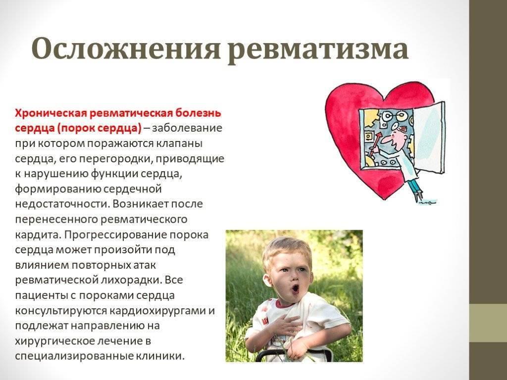 Осложнения ревматизма у детей. детский ревматизм, его особенности и лечение. варианты течения заболевания - умный доктор