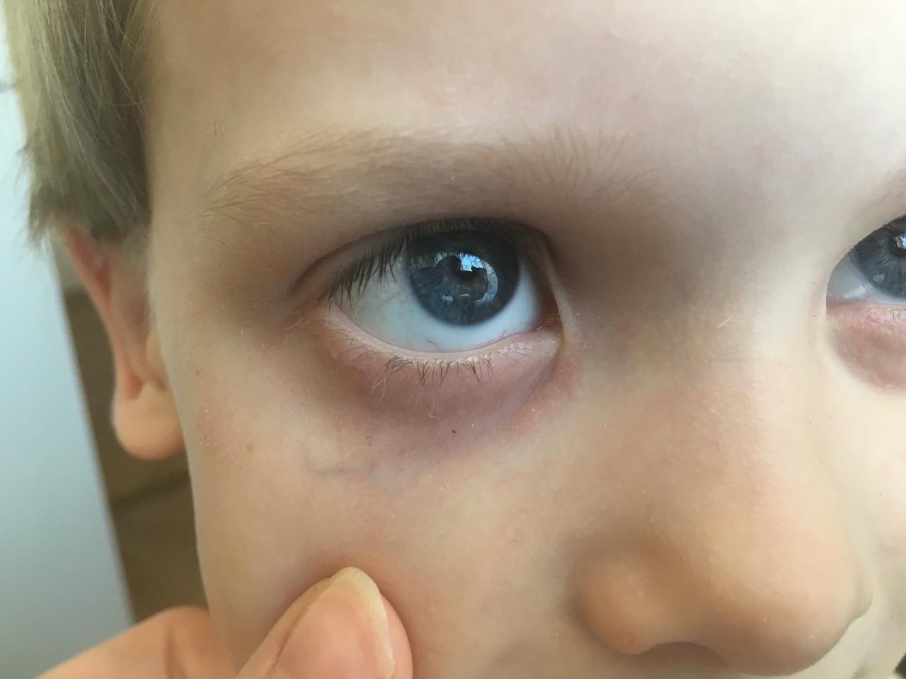 Доктор комаровский о причинах синяков под глазами у ребенка: почему у ребенка темные круги
