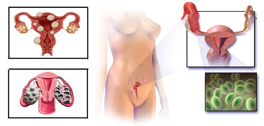 Гиперплазия эндометрия и беременность: есть ли шансы?