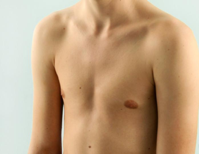 Килевидная и воронкообразная деформации грудной клетки у ребенка: причины, лечение без операции и массаж. деформация грудной клетки у детей