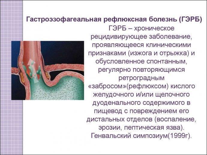 Гастроэзофагеальный рефлюкс у детей (ребенка, грудничка, новорожденного)