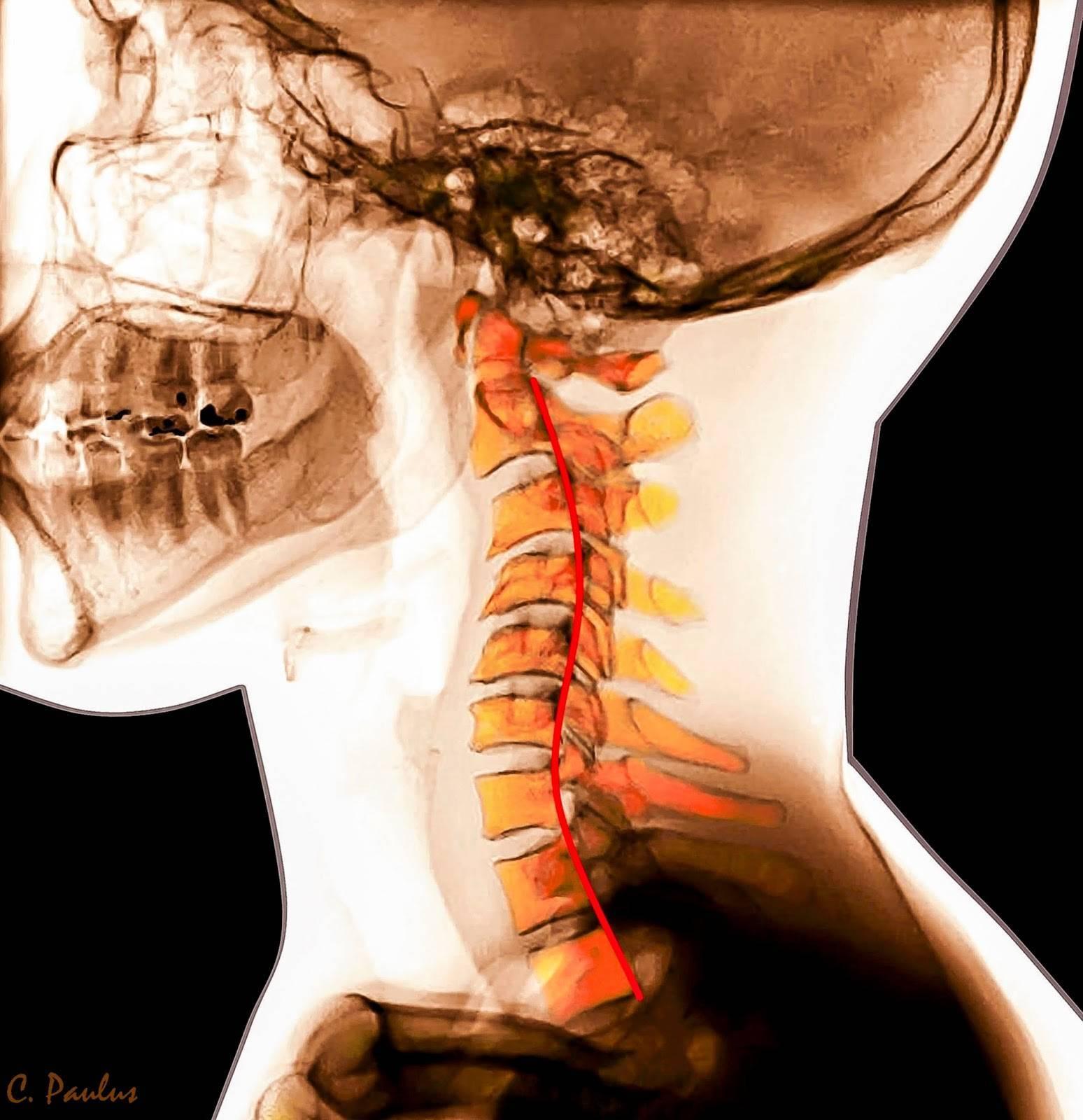 Нестабильность шейного отдела позвоночника у детей: симптомы, диагностика и лечение | все о суставах и связках