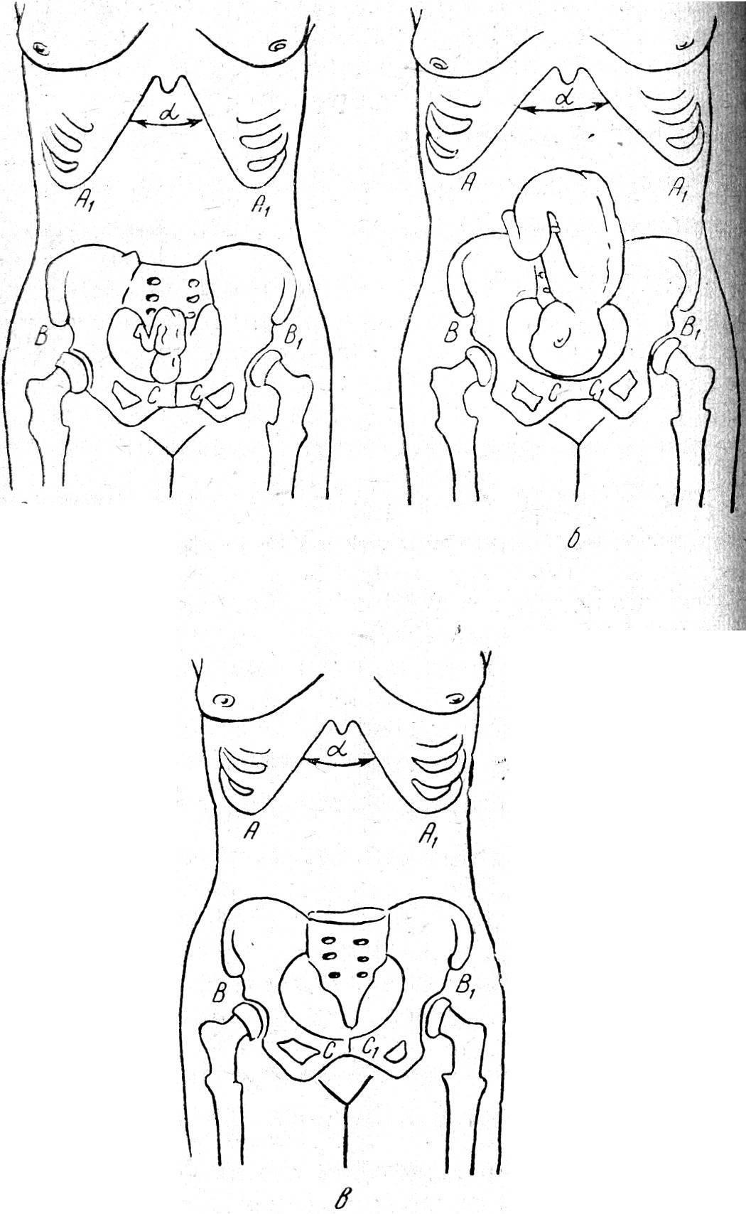 Когда начинают расходиться кости таза при беременности newmed.su - все для мамы и малыша