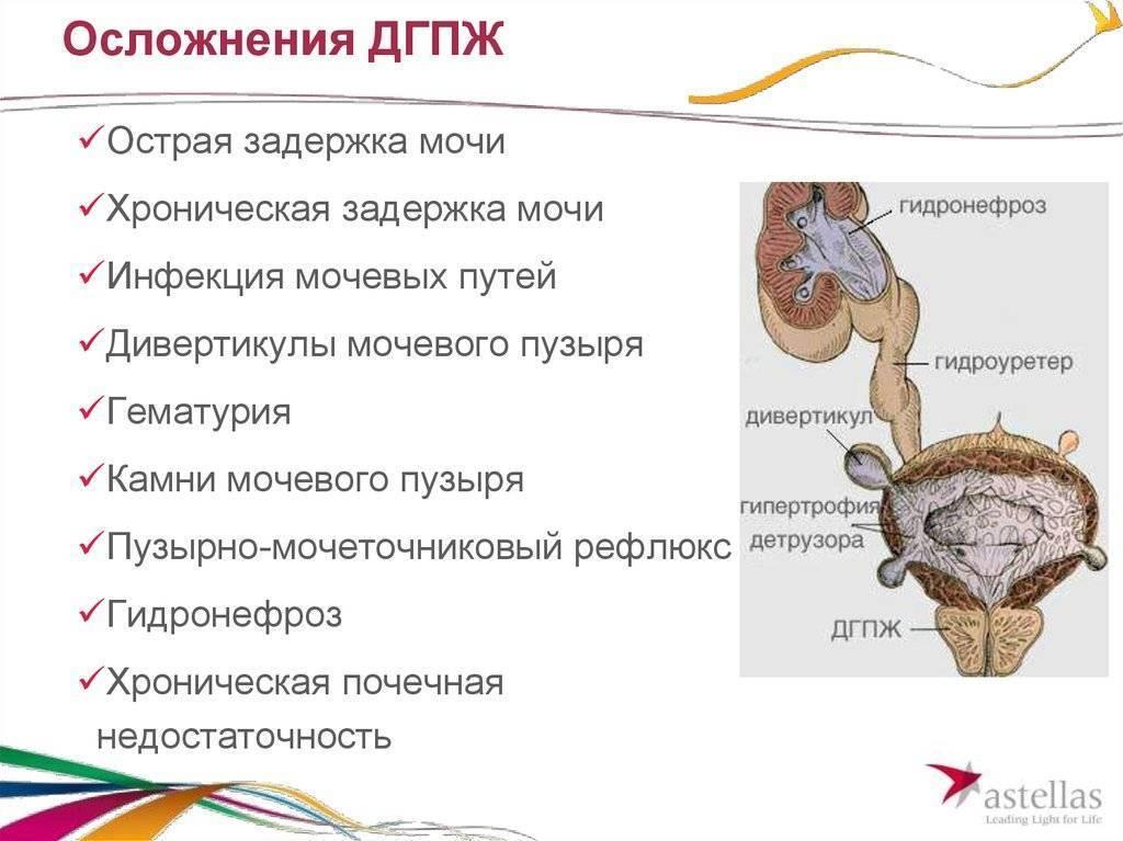 Нейрогенная дисфункция мочевого пузыря                (нейрогенный мочевой пузырь, автономный мочевой пузырь)