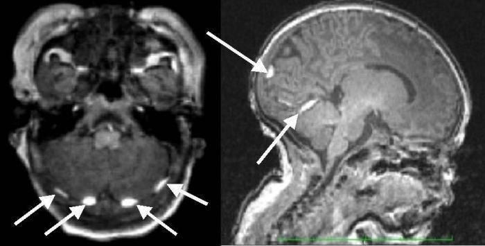 Кровоизлияние в мозг у новорожденного: как определить и оказать первую помощь