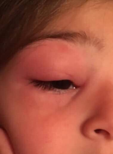 Отек глаз у переносицы причины и лечение