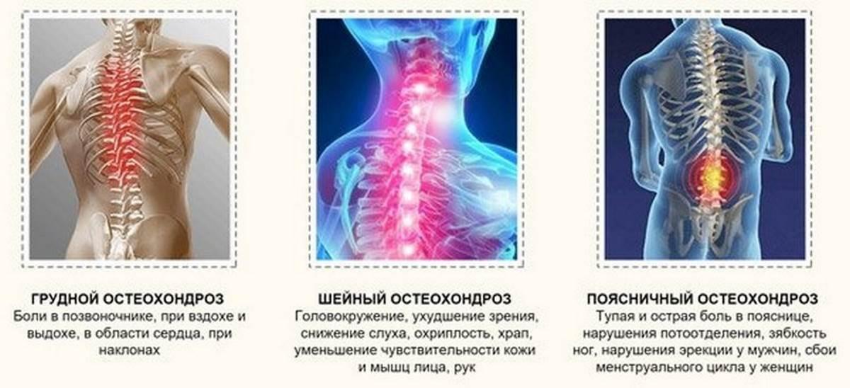 Юношеский остеохондроз позвоночника: симптомы и лечение