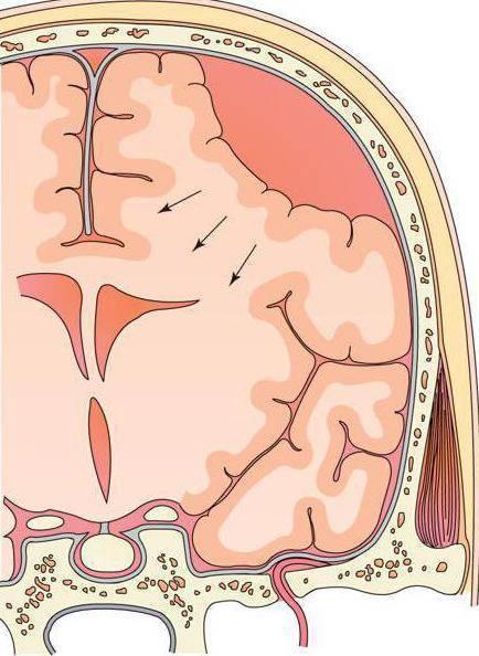 Кровоизлияние в мозг у новорожденных: последствия и методы терапии