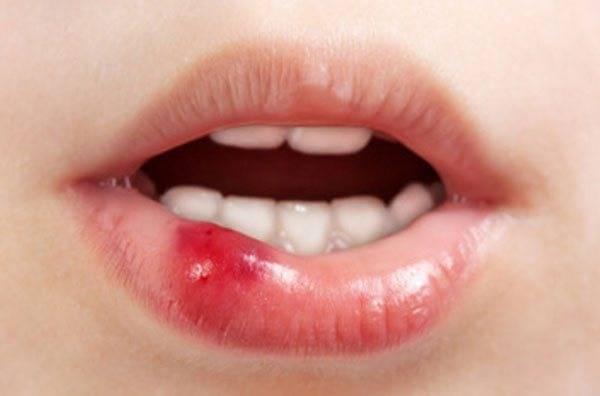 Ушиб губы с отеком у ребенка что делать в домашних - ушиб-лечение