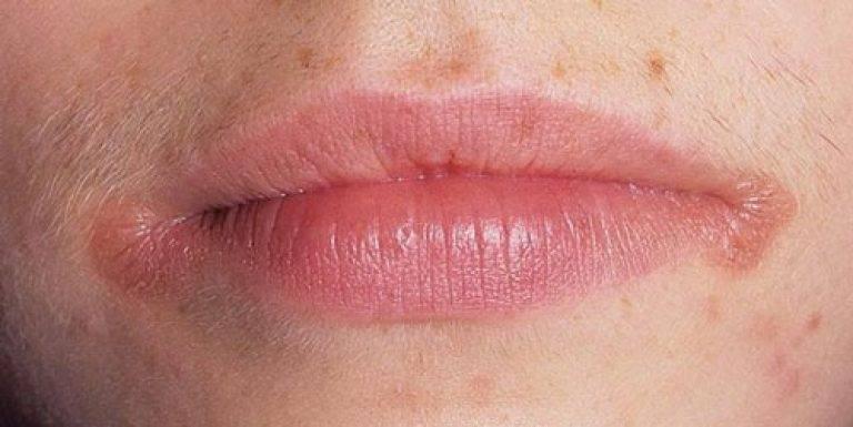 Заеды в уголках рта: причины, лечение, как вылечить заеды у взрослого и у ребенка