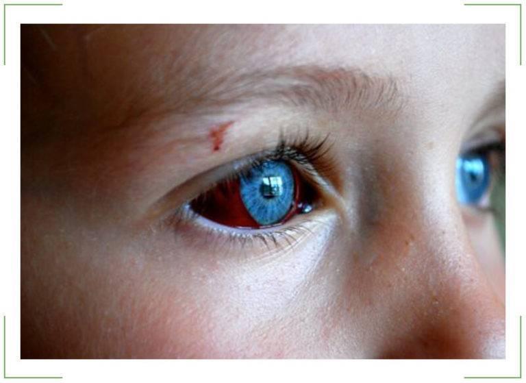 Лопнул капилляр в глазу у ребенка: причины, симптомы, лечение полопавшихся сосудов (у грудничка, дошкольника, школьника), профилактика