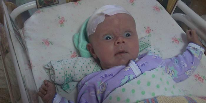 Гидроцефалия у ребенка: срочно лечить!