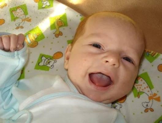 Белый язык у новорожденного при грудном вскармливании? без паники!