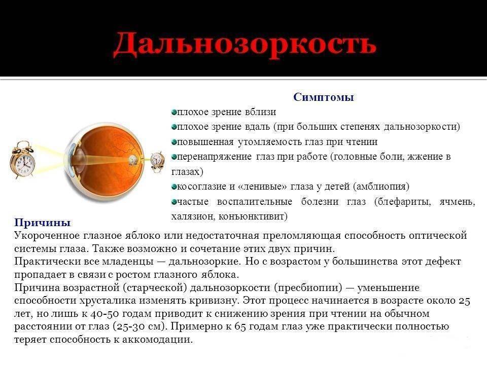Близорукость (миопия) – причины, симптомы и лечение заболевания глаз