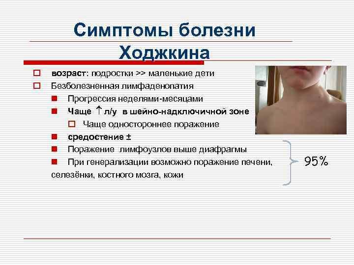 Лимфома у детей: причины, симптомы и возможные осложнения   лечение рака