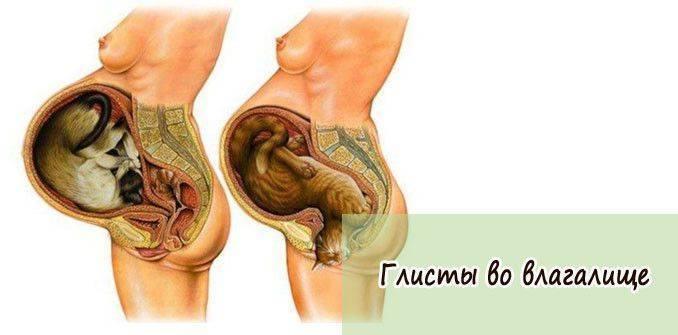 Глисты при беременности: ???? популярные вопросы про беременность и ответы на них