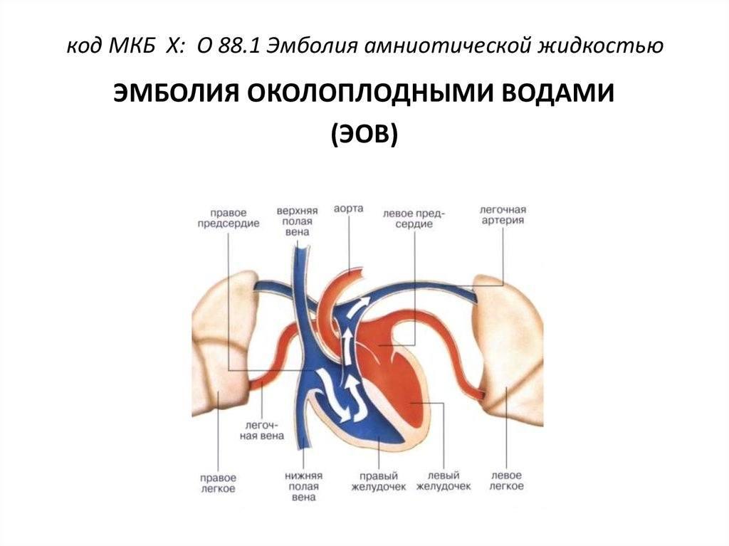 Эмболия околоплодными водами (эов): причины, симптомы и лечение